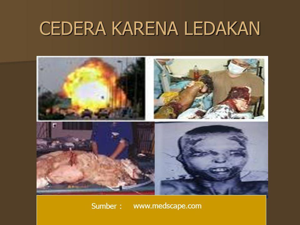 CEDERA KARENA LEDAKAN www.medscape.com Sumber :