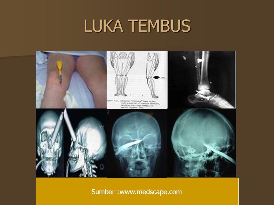 LUKA TEMBUS Sumber :www.medscape.com
