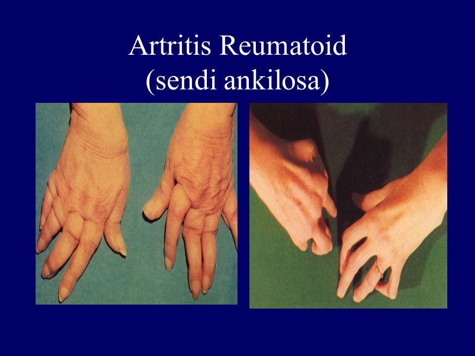 Artritis Reumatoid (sendi ankilosa)