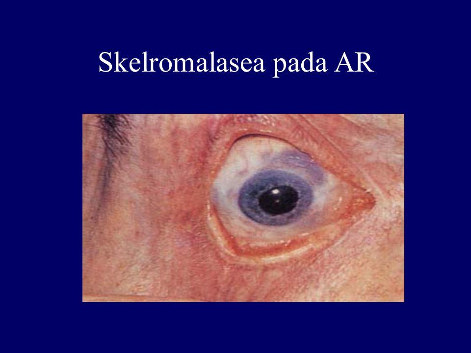 Skelromalasea pada AR