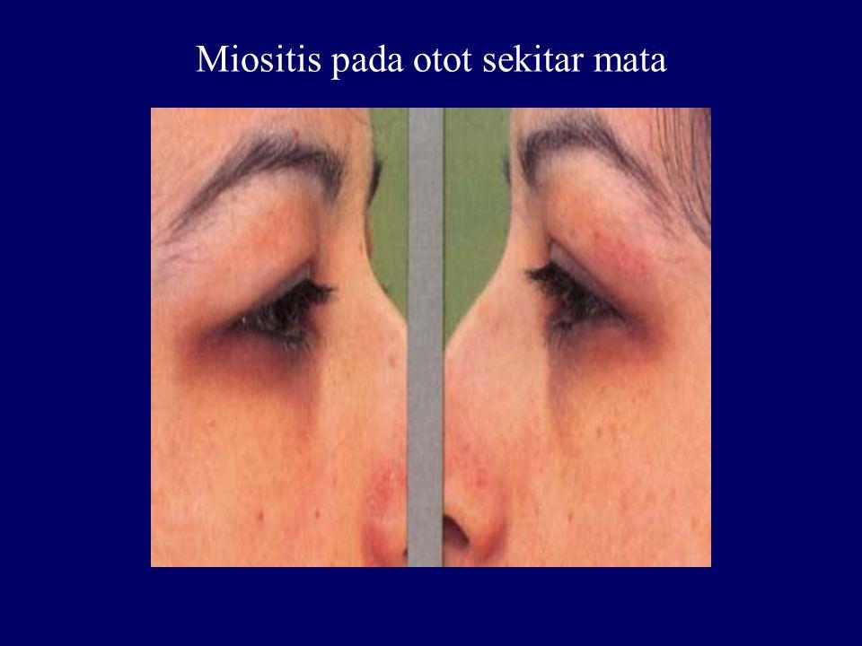 Miositis pada otot sekitar mata