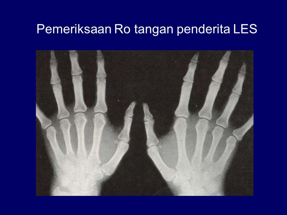 Pemeriksaan Ro tangan penderita LES