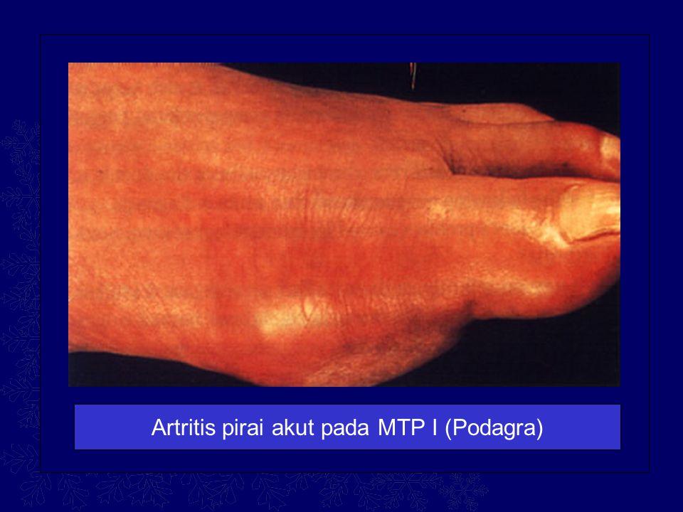 Artritis pirai akut pada MTP I (Podagra)