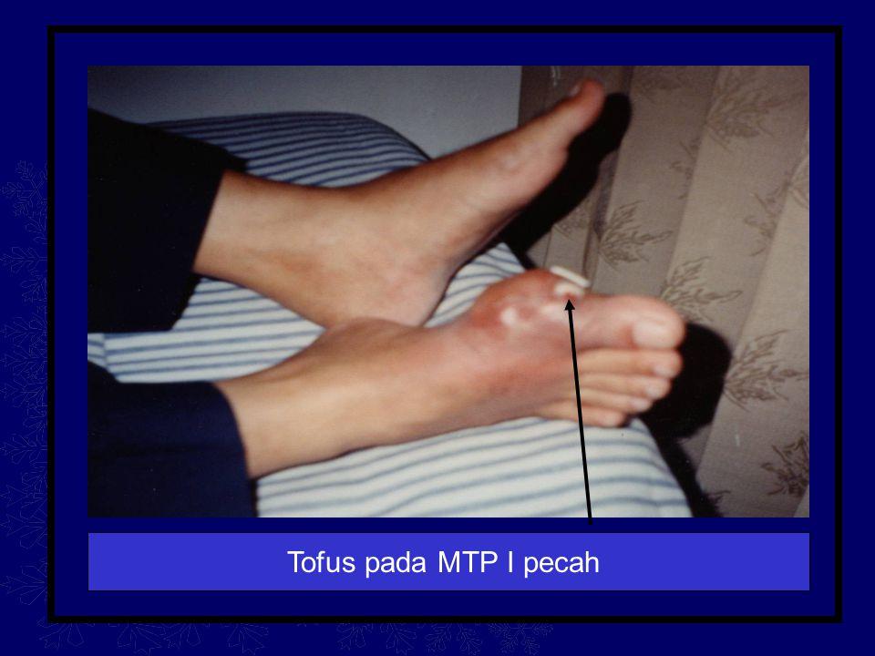 Tofus pada MTP I pecah