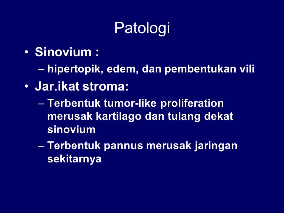 Patologi Sinovium : –hipertopik, edem, dan pembentukan vili Jar.ikat stroma: –Terbentuk tumor-like proliferation merusak kartilago dan tulang dekat si