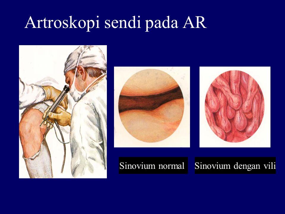 Artroskopi sendi pada AR Sinovium normallSinovium dengan vili