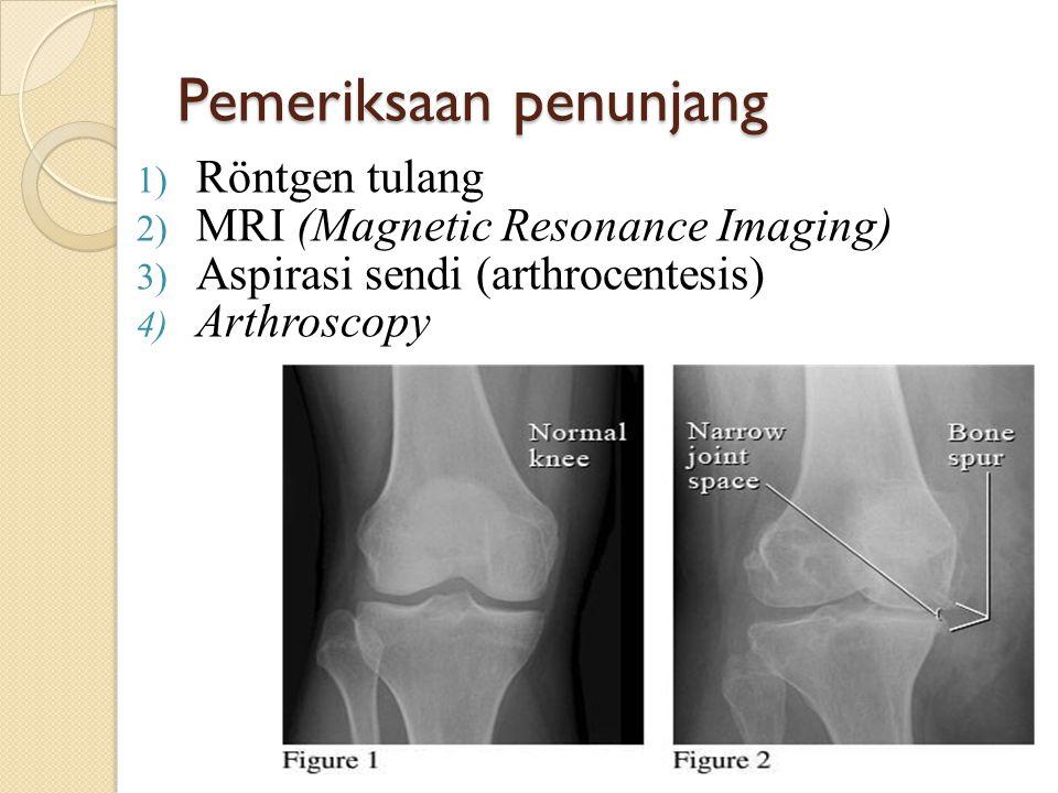 Pemeriksaan penunjang 1) Röntgen tulang 2) MRI (Magnetic Resonance Imaging) 3) Aspirasi sendi (arthrocentesis) 4) Arthroscopy