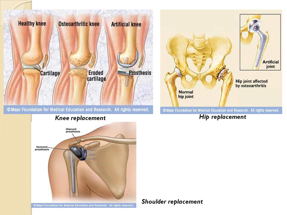 Knee replacement Hip replacement Shoulder replacement