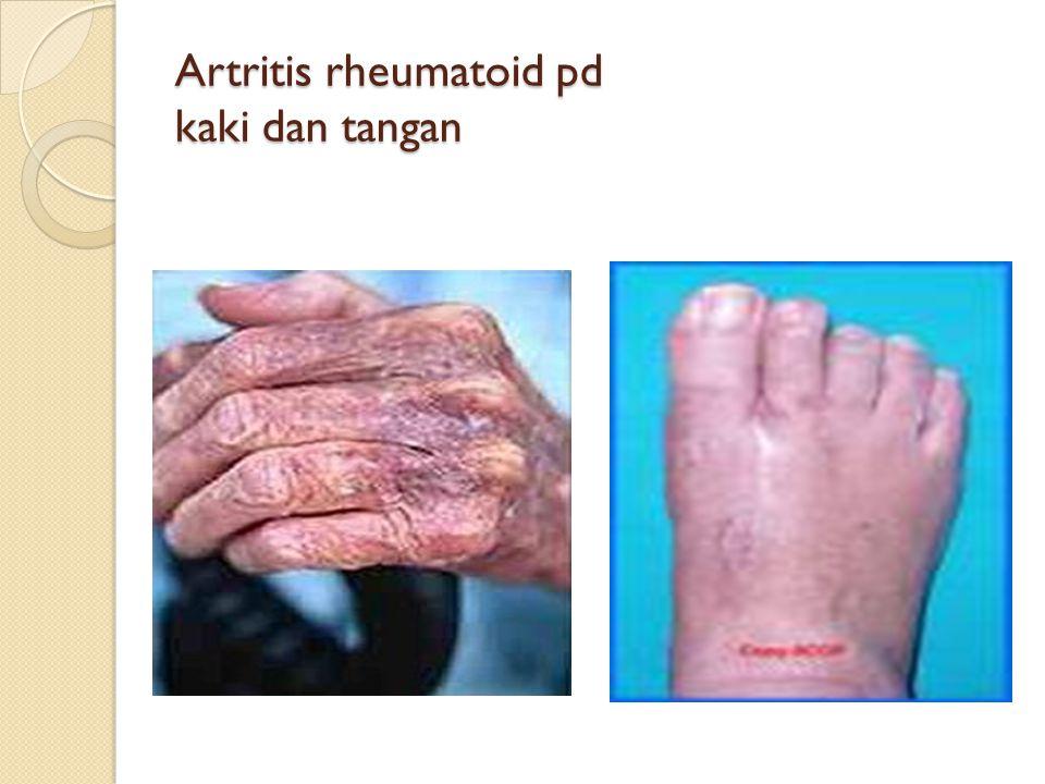 Artritis rheumatoid pd kaki dan tangan