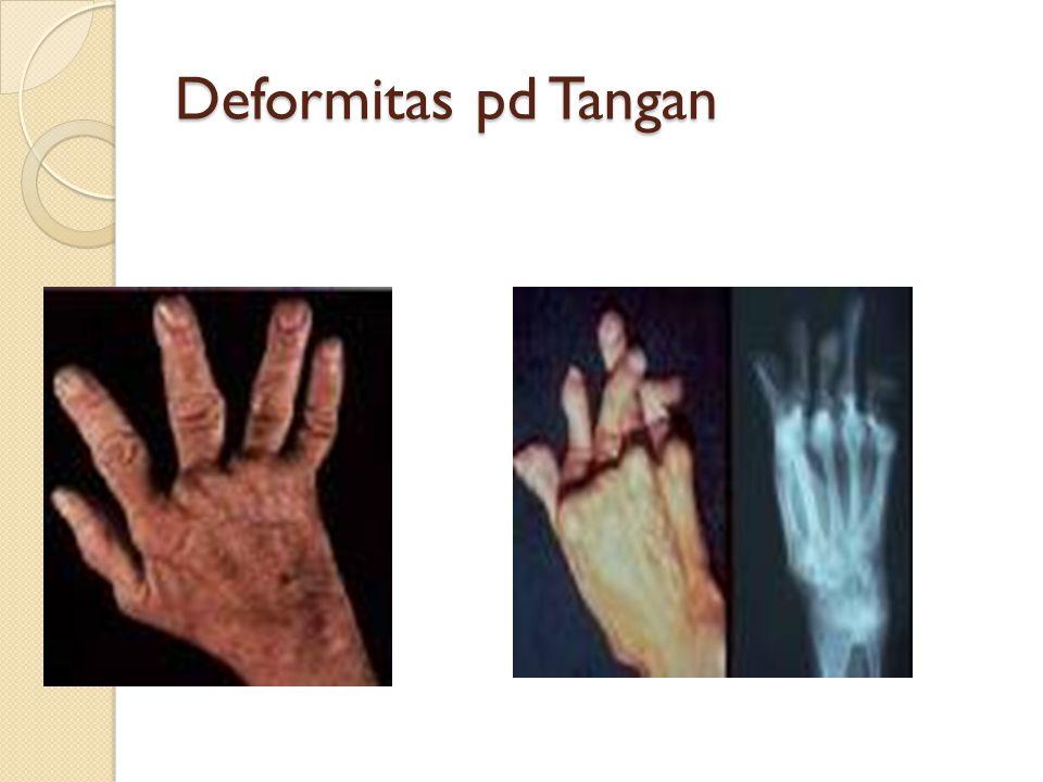 Deformitas pd Tangan