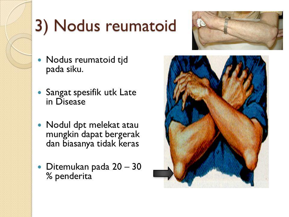 3) Nodus reumatoid Nodus reumatoid tjd pada siku. Sangat spesifik utk Late in Disease Nodul dpt melekat atau mungkin dapat bergerak dan biasanya tidak