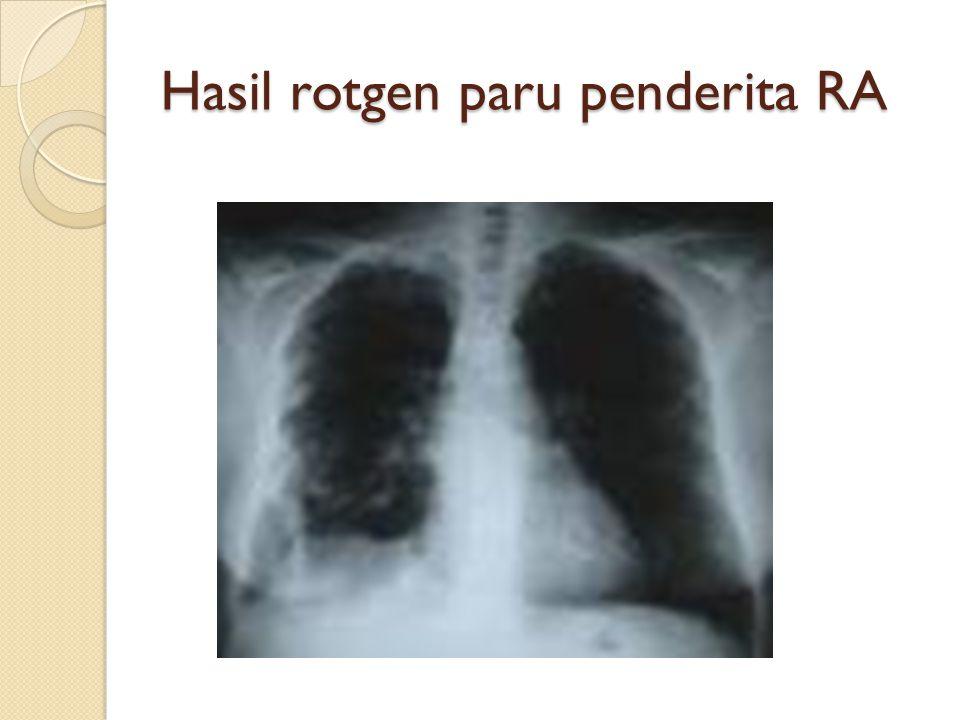 Hasil rotgen paru penderita RA