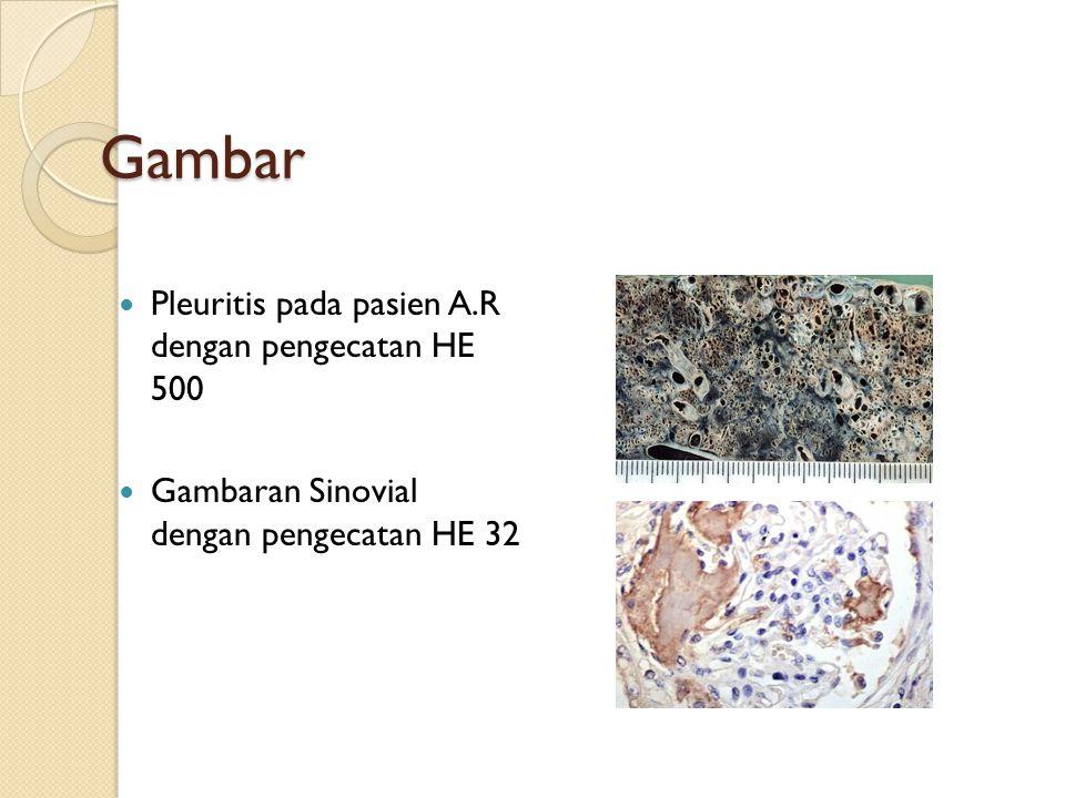 Gambar Pleuritis pada pasien A.R dengan pengecatan HE 500 Gambaran Sinovial dengan pengecatan HE 32