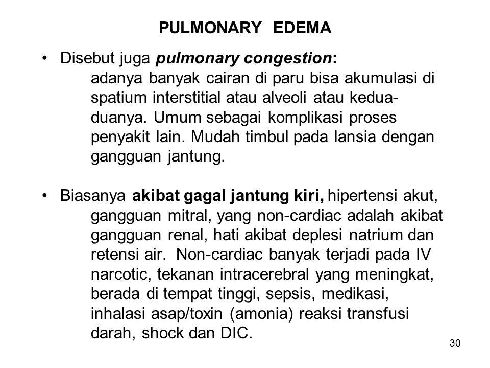 30 PULMONARY EDEMA Disebut juga pulmonary congestion: adanya banyak cairan di paru bisa akumulasi di spatium interstitial atau alveoli atau kedua- duanya.