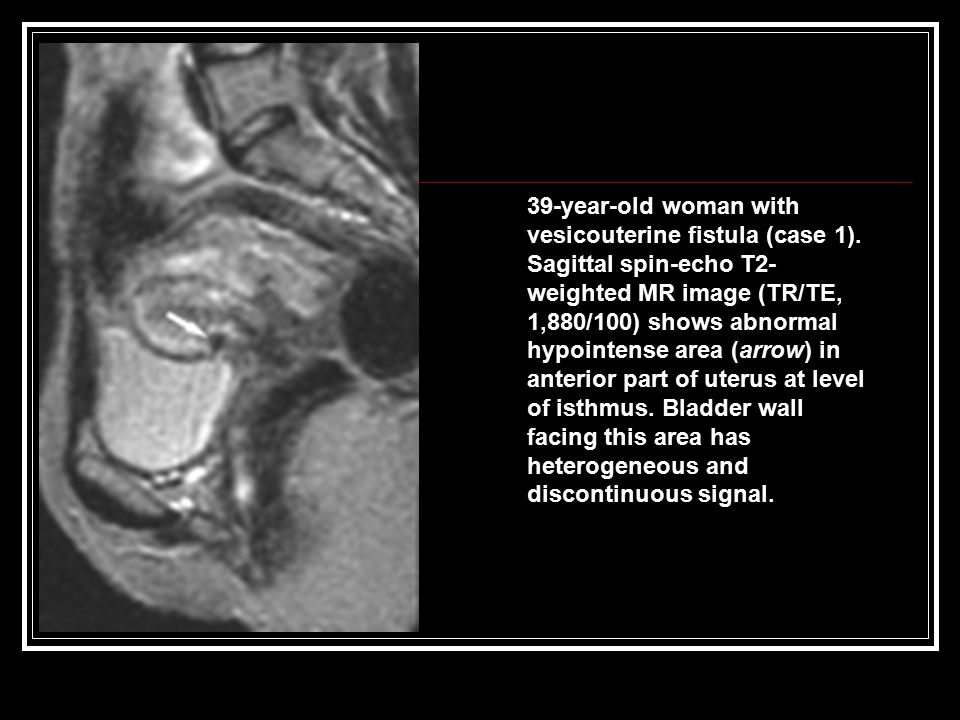 39-year-old woman with vesicouterine fistula (case 1).