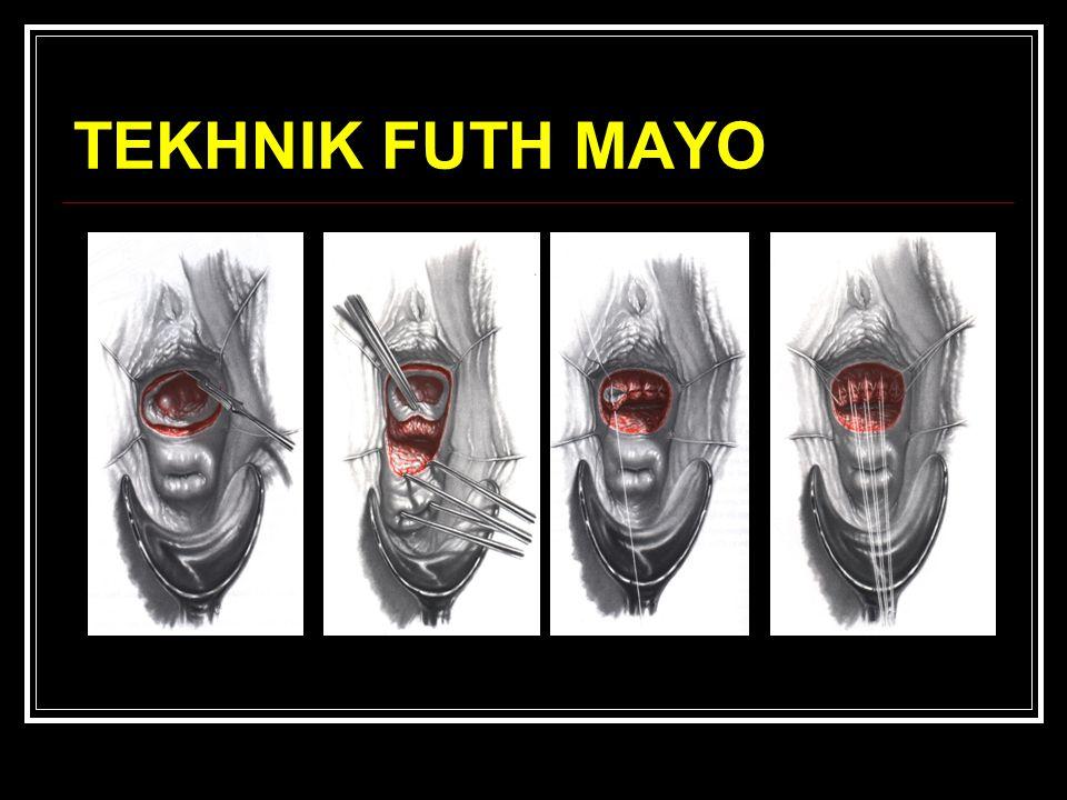 TEKHNIK FUTH MAYO