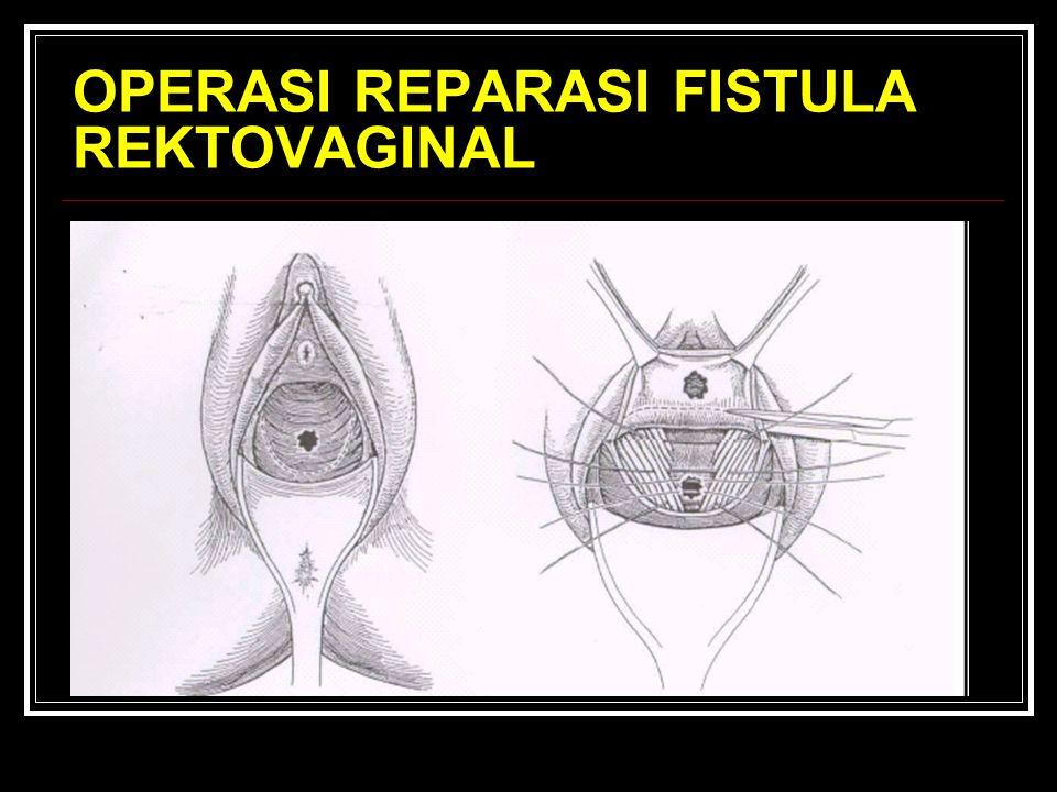 OPERASI REPARASI FISTULA REKTOVAGINAL