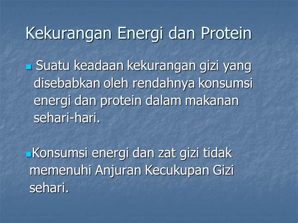 Kekurangan Energi dan Protein Suatu keadaan kekurangan gizi yang Suatu keadaan kekurangan gizi yang disebabkan oleh rendahnya konsumsi disebabkan oleh