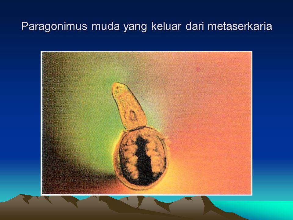 Paragonimus muda yang keluar dari metaserkaria