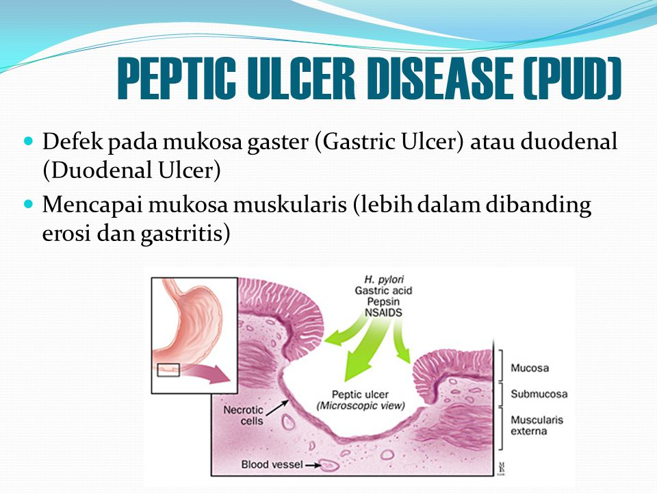 PEPTIC ULCER DISEASE (PUD) Defek pada mukosa gaster (Gastric Ulcer) atau duodenal (Duodenal Ulcer) Mencapai mukosa muskularis (lebih dalam dibanding e