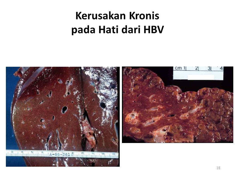 Kerusakan Kronis pada Hati dari HBV 18