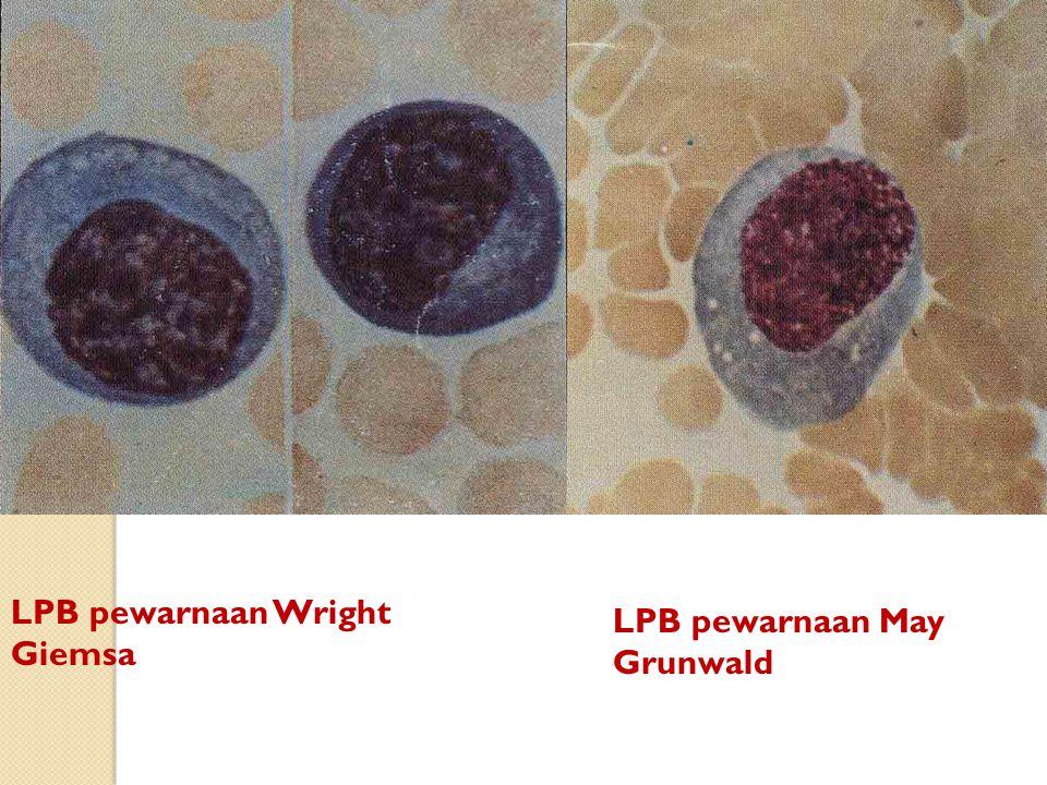 LPB pewarnaan May Grunwald LPB pewarnaan Wright Giemsa