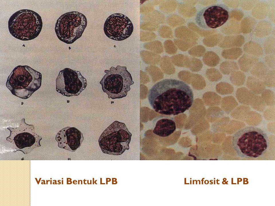 Variasi Bentuk LPBLimfosit & LPB