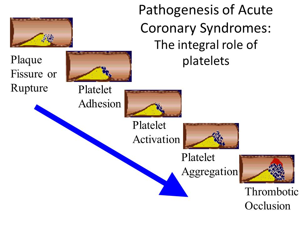 Pathogenesis of Acute Coronary Syndromes: The integral role of platelets Plaque Fissure or Rupture Platelet Aggregation Platelet Activation Platelet Adhesion Thrombotic Occlusion