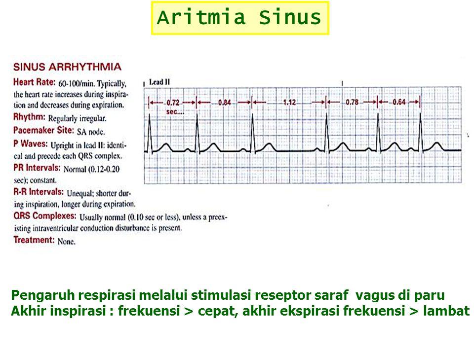 Aritmia Sinus Pengaruh respirasi melalui stimulasi reseptor saraf vagus di paru Akhir inspirasi : frekuensi > cepat, akhir ekspirasi frekuensi > lamba