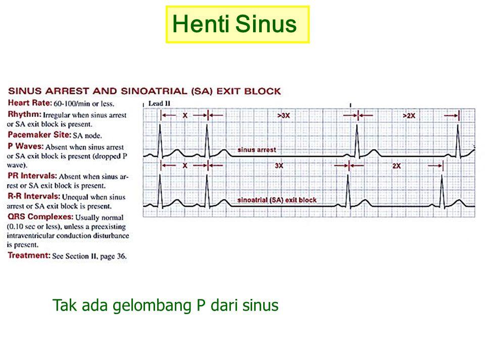 Henti Sinus Tak ada gelombang P dari sinus