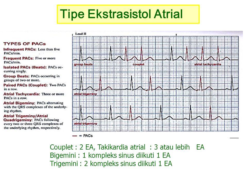 Tipe Ekstrasistol Atrial Couplet : 2 EA, Takikardia atrial : 3 atau lebih EA Bigemini : 1 kompleks sinus diikuti 1 EA Trigemini : 2 kompleks sinus dii