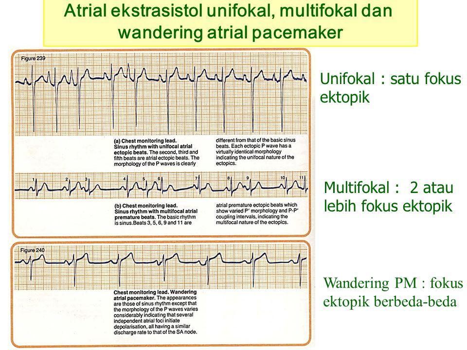 Atrial ekstrasistol unifokal, multifokal dan wandering atrial pacemaker Multifokal : 2 atau lebih fokus ektopik Unifokal : satu fokus ektopik Wanderin