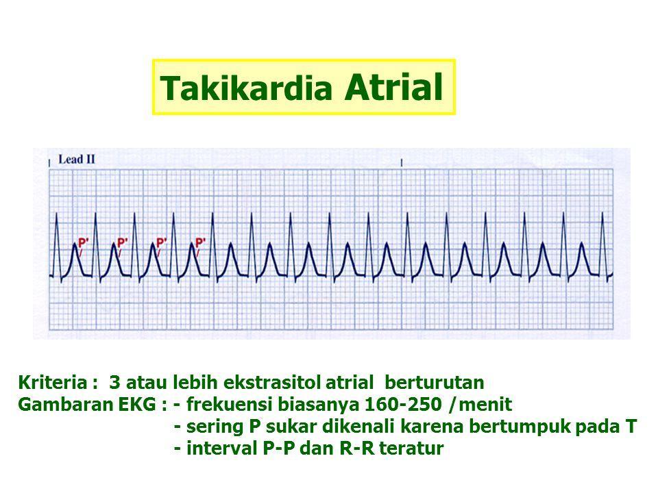 Takikardia Atrial Kriteria : 3 atau lebih ekstrasitol atrial berturutan Gambaran EKG : - frekuensi biasanya 160-250 /menit - sering P sukar dikenali k