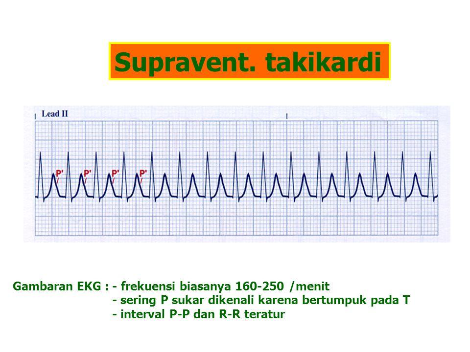 Supravent. takikardi Gambaran EKG : - frekuensi biasanya 160-250 /menit - sering P sukar dikenali karena bertumpuk pada T - interval P-P dan R-R terat