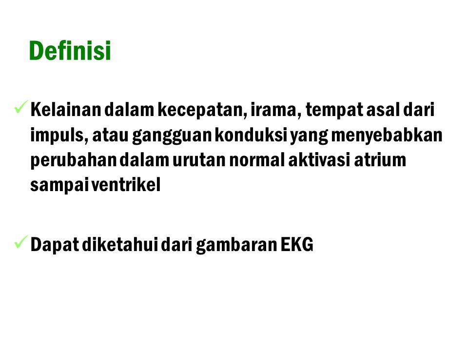 Ekstrasistol Atrial Kriteria : - gelombang P prematur dari atrium - biasanya pause kompensasi tak lengkap