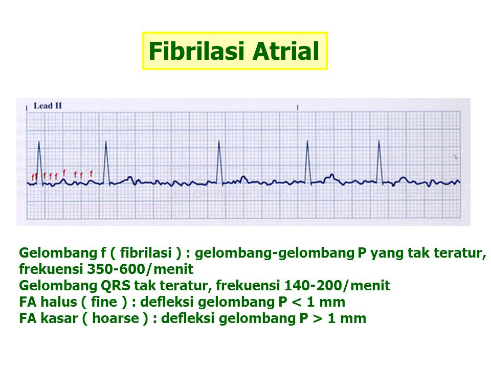 Fibrilasi Atrial Gelombang f ( fibrilasi ) : gelombang-gelombang P yang tak teratur, frekuensi 350-600/menit Gelombang QRS tak teratur, frekuensi 140-