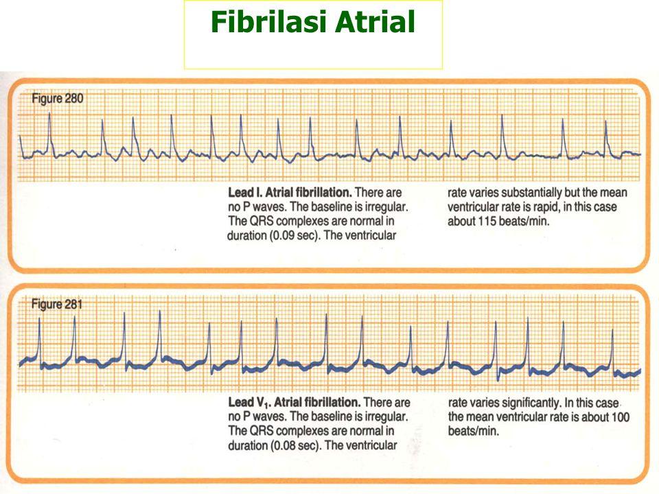 Fibrilasi Atrial