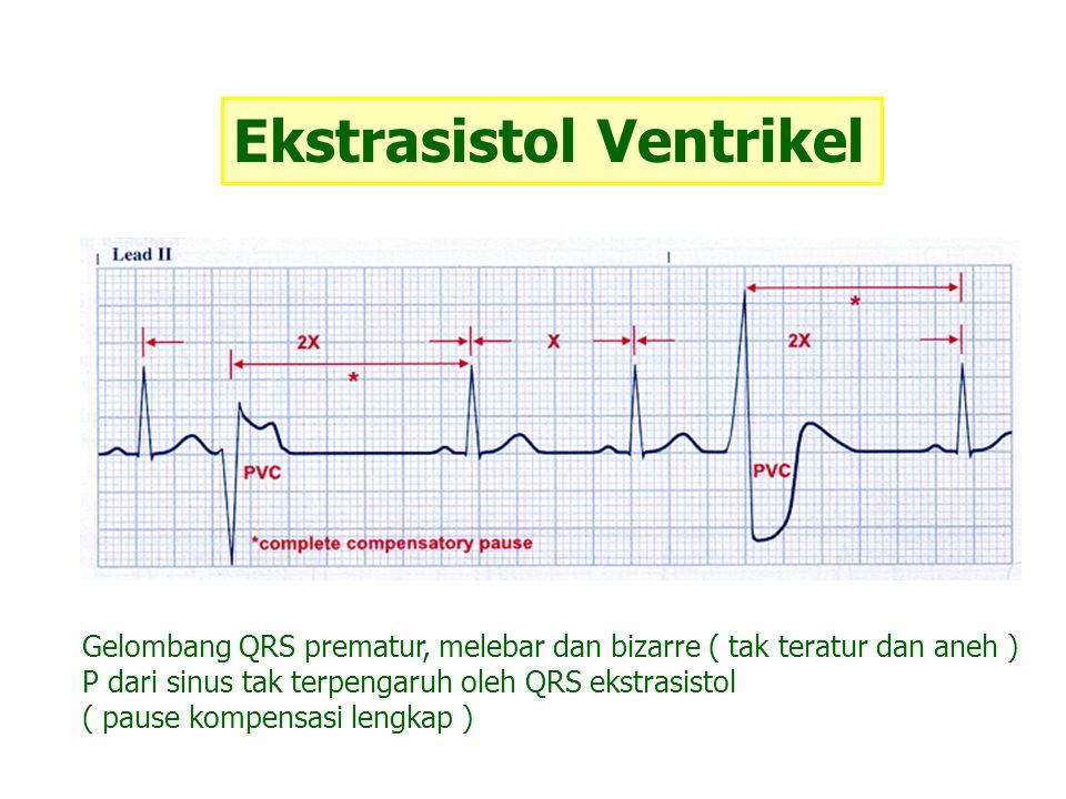 Ekstrasistol Ventrikel Gelombang QRS prematur, melebar dan bizarre ( tak teratur dan aneh ) P dari sinus tak terpengaruh oleh QRS ekstrasistol ( pause