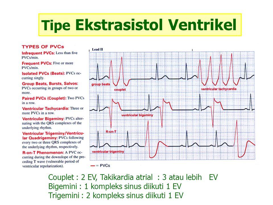 Tipe Ekstrasistol Ventrikel Couplet : 2 EV, Takikardia atrial : 3 atau lebih EV Bigemini : 1 kompleks sinus diikuti 1 EV Trigemini : 2 kompleks sinus