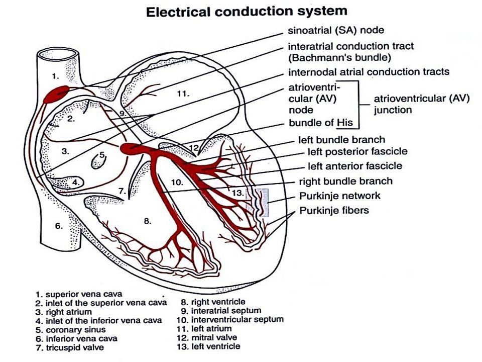 Irama Penghubung / Junctional Gelombang P prematur berasal dari penghubung AV : vektor P lawan arus ( P negatif di II, III dan aVF )
