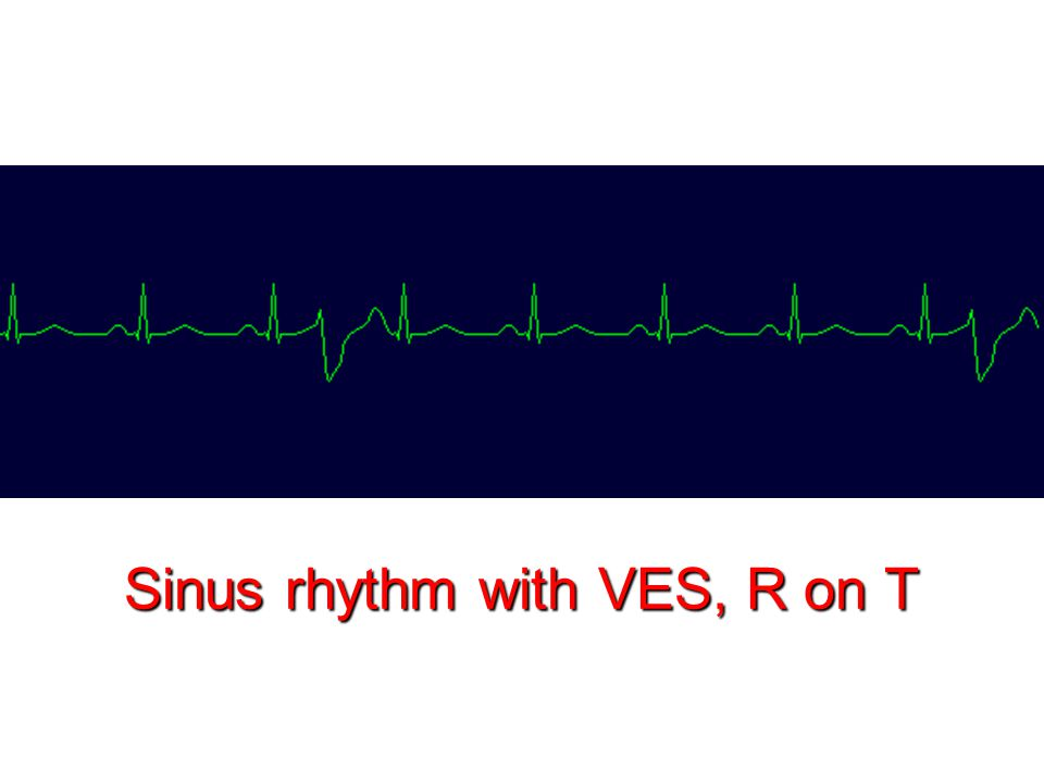 Sinus rhythm with VES, R on T