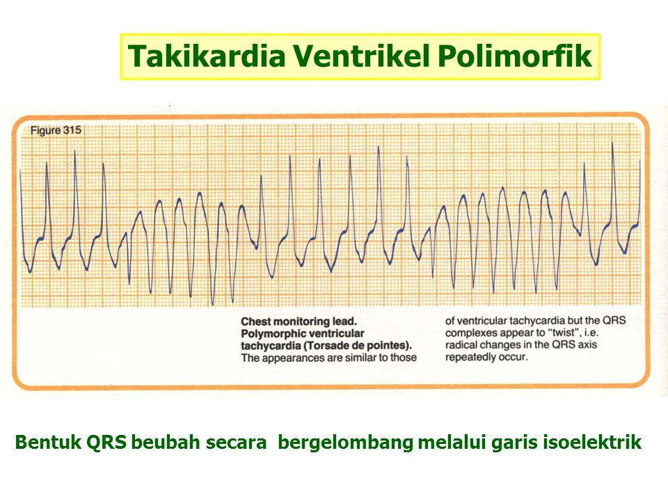 Takikardia Ventrikel Polimorfik Bentuk QRS beubah secara bergelombang melalui garis isoelektrik