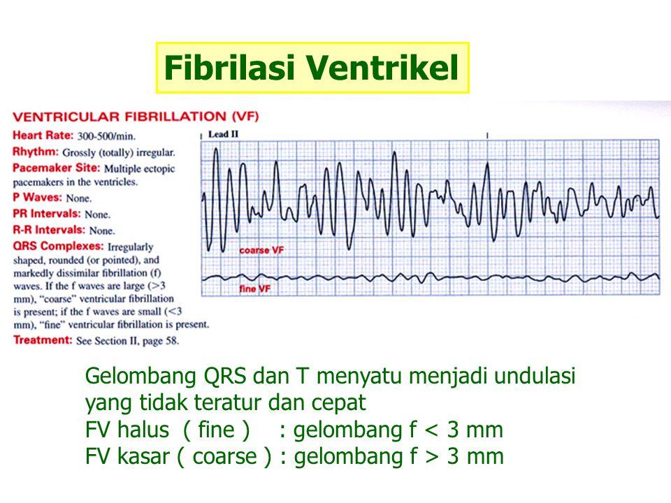 Fibrilasi Ventrikel Gelombang QRS dan T menyatu menjadi undulasi yang tidak teratur dan cepat FV halus ( fine ) : gelombang f < 3 mm FV kasar ( coarse