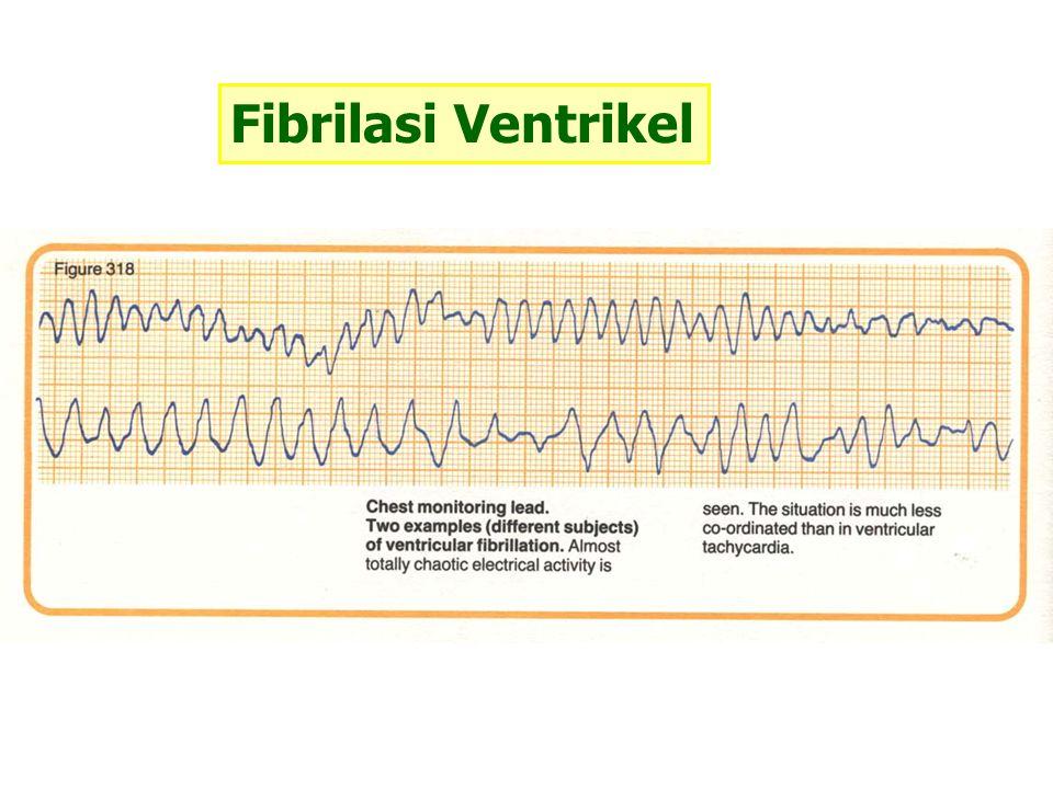 Fibrilasi Ventrikel