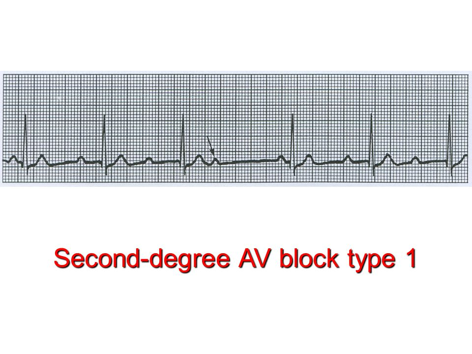 Second-degree AV block type 1