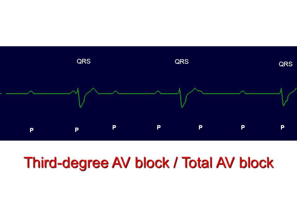 P P PPPPP QRS Third-degree AV block / Total AV block