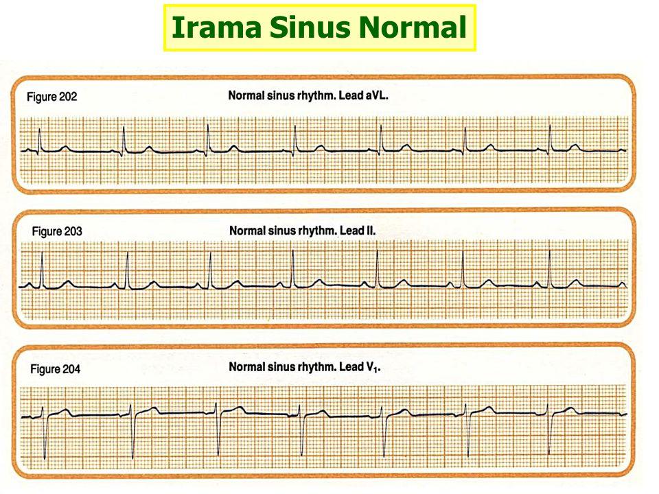 Takikardia Atrial Kriteria : 3 atau lebih ekstrasitol atrial berturutan Gambaran EKG : - frekuensi biasanya 160-250 /menit - sering P sukar dikenali karena bertumpuk pada T - interval P-P dan R-R teratur