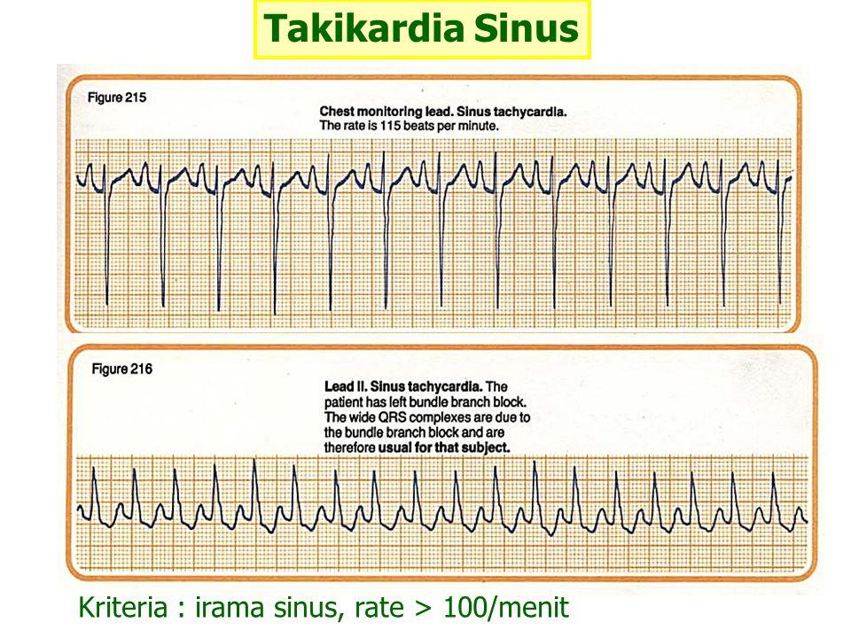 Fibrilasi Atrial Gelombang f ( fibrilasi ) : gelombang-gelombang P yang tak teratur, frekuensi 350-600/menit Gelombang QRS tak teratur, frekuensi 140-200/menit FA halus ( fine ) : defleksi gelombang P < 1 mm FA kasar ( hoarse ) : defleksi gelombang P > 1 mm