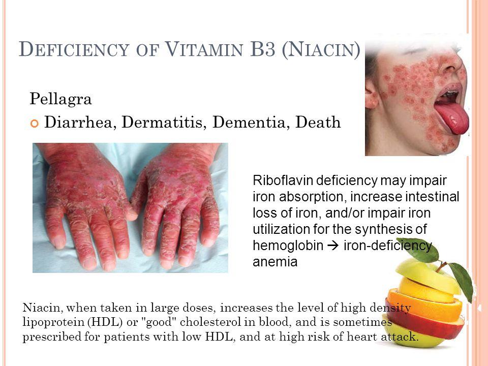 D EFICIENCY OF V ITAMIN B3 (N IACIN ) Pellagra Diarrhea, Dermatitis, Dementia, Death Riboflavin deficiency may impair iron absorption, increase intest