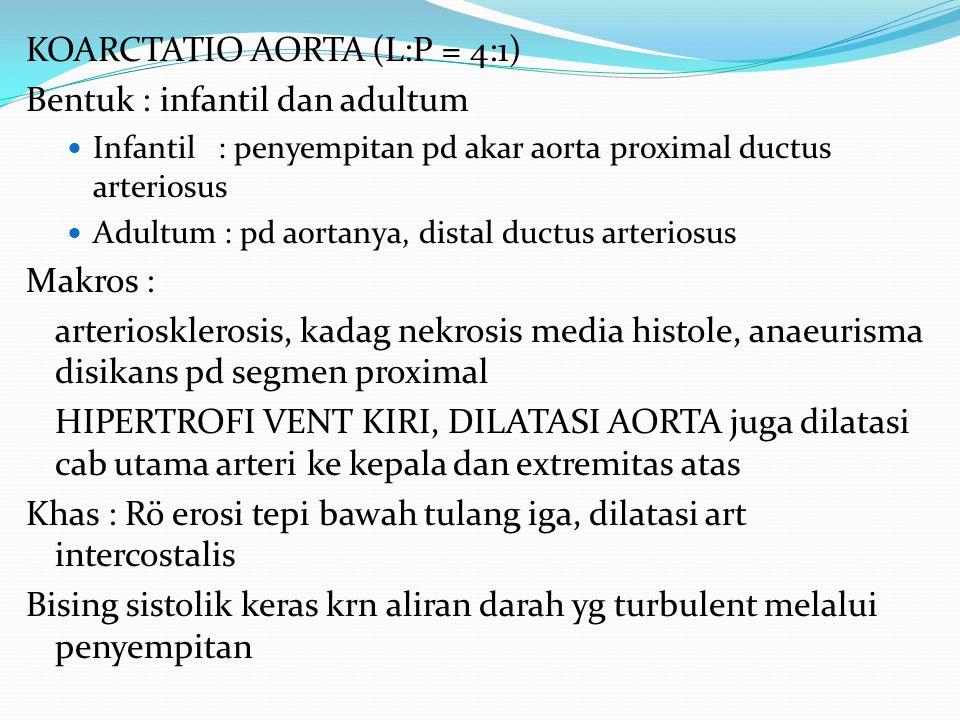 KOARCTATIO AORTA (L:P = 4:1) Bentuk : infantil dan adultum Infantil: penyempitan pd akar aorta proximal ductus arteriosus Adultum : pd aortanya, dista